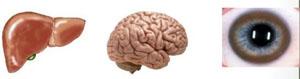 Órganos afectados por la enfermedad de Wilson: Hígado, cerebro y ojos