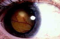 Imagen de ojo con Retinoblastoma (mancha blanca en pupila)