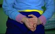 Las manos de una niña con Síndrome de Rett