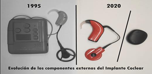 Evolutivo del implante coclear desde 1995 hasta 2020