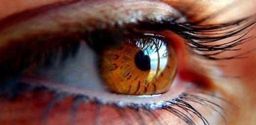 Detalle de ojo con Glaucoma Congénito