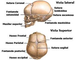 imagen de craneo y cerebro con hidrocefalia