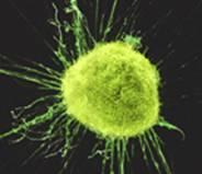 Foto de Célula de cáncer infantil