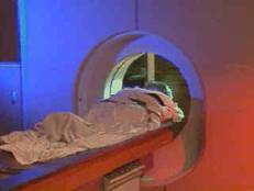Persona con esclerosis múltiple haciéndose un escaner