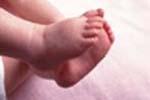 Pies de un bebé con espina bífida